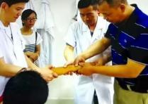 传统中医 手法接骨 团队配合 再现奇迹
